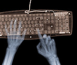 X-ray image of hands and keyboard (color on black) by Jim Wehtje, specialist in x-ray art and design images.