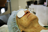 eye cataract , patient after an eye-surgery with a pad on her eye *** Local Caption ***