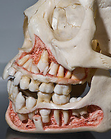 Human skull of about a 11 to 12 year old showing developing and erupting teeth.