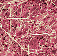Human fat cells and collagen, SEM X200