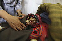 Malnourished child in a pediatric ward of a hospital in Afghanistan