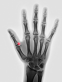 Hand x-ray of a 17 year old girl showing a small fracture at the base of the proximal phalanx of the thumb