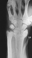 Comminuted distal radial fracture.