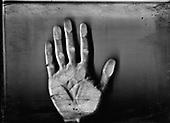 Wroclaw 01.2010 Poland<br /> Scan of a hand of transsexual Marina Till.<br /> Marina Till, a transsexual, has had numerous medical examinations and treatments, such as a very intense hormonal therapy, at times seriously weakening her organism. For a long time she has been dreaming  about a sex change surgery that she can not afford. She does not accept herself and her body. Frequent suicide attempts and alcohol abuse, are means of escape from the body she lives in. A body that does not belong to her.<br /> Photo: Adam Lach / Napo Images<br /> <br /> Skan dloni transseksualisty Mariny Till.<br /> Transseksualista Marina Till przeszla juz setki kuracji hormonalnych i badan psychoterapeutycznych, ktore w znaczny sposob wycienczyly jej organizm. Od wielu lat marzy o zmianie plci lecz najzwyczajniej nie stac ja na zbyt kosztowna operacje. Nie akceptuje siebie, nie akceptuje swojego ciala. Czeste proby samobojcze i znaczne ilosci alkoholu sa dla niej sposobem na ucieczke, przede wszystkim od swiadomosci ze cialo w ktorym zyje nie nalezy do niej.<br /> Fot: Adam Lach / Napo Images