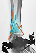 Colorized x-ray of a comminuted fracture of the ankle of a 71 year old man.  There are multiple bone fragments (blue), stabilized with internal pins (brown) and an external fixation device.