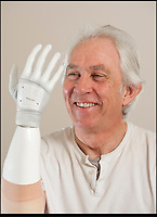 BNPS.co.uk (01202) 558833.Picture: Peter Willows..Chris Taylor has become the first in the UK to be fitted with a bionic limb that has electronic fingers and thumb. Chris (58) from Ivybridge, Devon, lost his right hand when he fell off a jet-ski in 2009, but he has now been fitted with the £47,000 limb by specialists Dorset Orthopaedic.  Electrodes in the arm are able to sense muscle movements, and these signals are used to control electronic motors that move the fingers. Chris can now hold and grip a variety of different-sized objects, allowing him to carry out complex wiring work for his job as a service engineer.