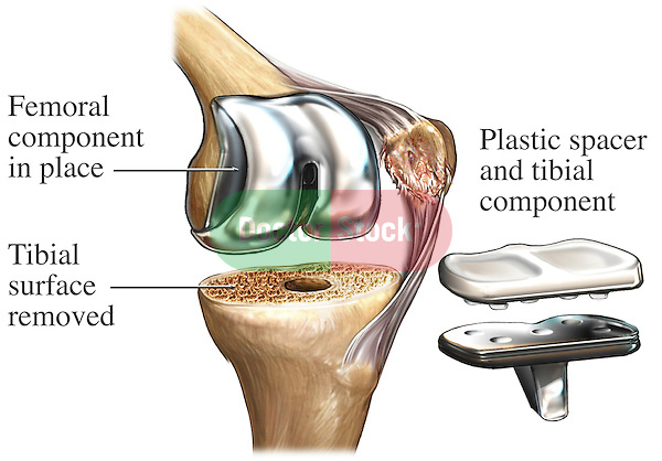 Total Knee Joint Replacement Surgery. This illustration features a single surgical view of the bones of the left knee showing the placement of a tibial component in a knee replacement. Specifically labeled are; Femoral component in place, tibial surface removed, and plastic spacer and tibial component.