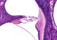 Cochlea section showing the Organ of Corti. LM