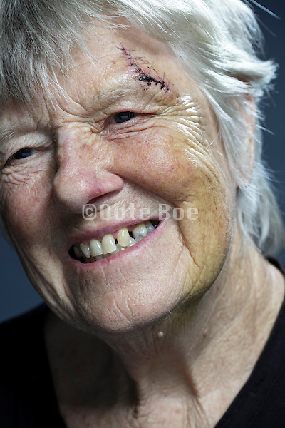 smiling senior woman with head injury