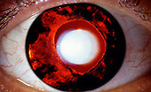 Iris atrophy or degeneration shown by red reflex.