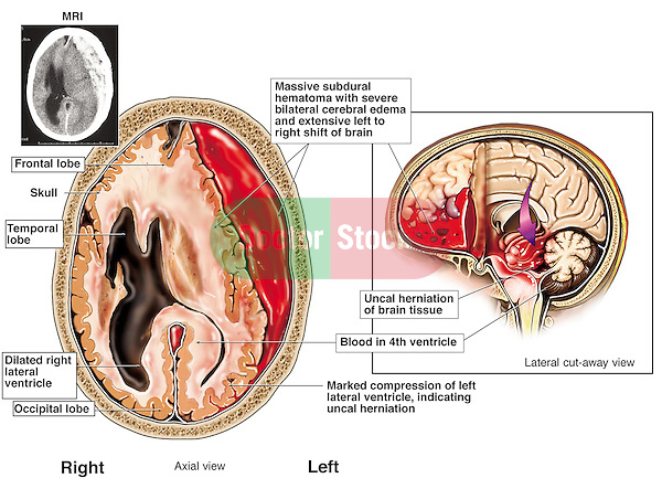 Temporal Lobe Injury From Frontal Car Accident