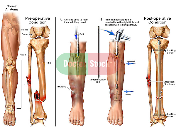 Fractured Tibia and Fibula (Broken Lower Leg Bones) with Fixation Surgery. This medical illustration series pictures the bones of the right lower leg revealing pre-operative displaced fractures of the tibia and fibula. Additional  surgical images reflect the following: 1. Incision into the anterior knee region with a drill reaming the tibial canal, 2. Insertion of an intramedullary rod-nail, and finally 4. Post-operative view with fixation hardware in place.