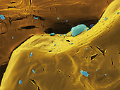 Urea powder, frequently used in scientific laboratories. SEM, REM.