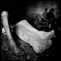Hula, South Lebanon, Sept.  2006.Mahmoud Yahoub, 35, a sheperd, lost his left heel and was seriously injured to both legs by shrapnels from a  Israeli cluster bomb submunition on 26 august, 12 days after the end of the war. He was wounded near his village as he was guarding his sheeps. His mother Fatima Fares, 83, never leaves his side.