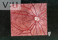 Fundus of an Asian