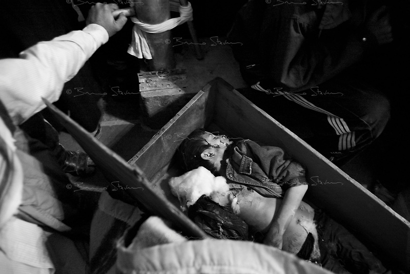 Baghdad, Iraq, March 28, 2003.Kara Hussein, 9, is one of the 52 victims of the unidentified missile that exploded at dusk in the middle of a crowded market in Al Shuala', a very poor area of North West Baghdad.