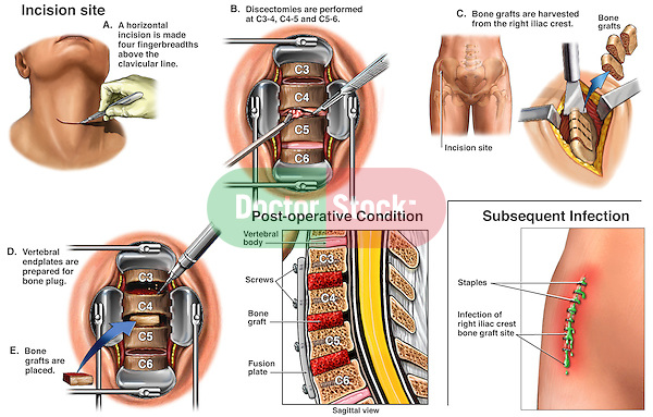 Spine Surgery - C3-4, C4-5, C5-6 Anterior Cervical Neck Discectomy (Diskectomy) and Spinal Fusion with Subsequent Infection of Graft Harvest Site.