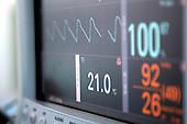 Close up of patient heart monitor screen. Royalty Free