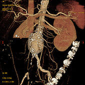 CT angiogram showing a 5 cm abdominal aortic aneurysm.
