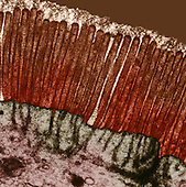 Cross-section of microvilli in the human digestive tract showing the glycocalyx on the brush border. TEM X20,000 .The role of microvilli are to increase surface area which in turn increases absorption of the cell. Glycocalyx or cell surface coat is a layer on the outside of the plasma membrane. It keeps ions in and also serves in a protective role for the cell.