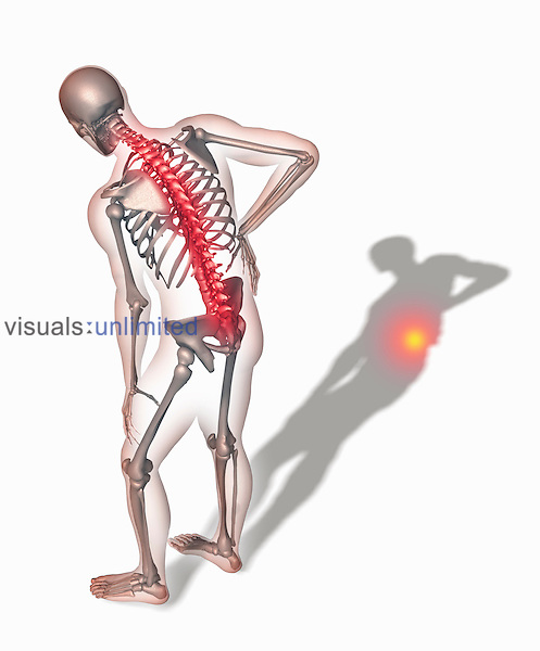Biomedical illustration of a person hunched over holding the back in pain