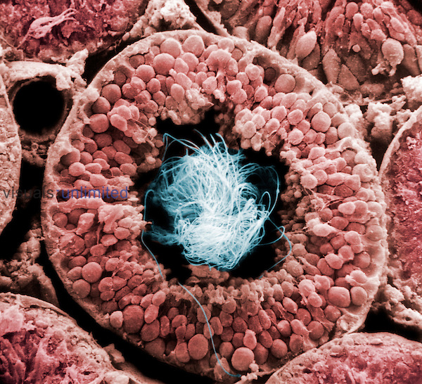 Cross section of a human testis tubule filled with sperm. SEM X363.  **On Page Credit Required**