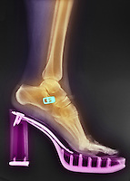 Colorized x-ray of a woman in high heels