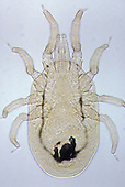 Chicken Mite or Red Mite (Dermanyssus gallinae). LM X30