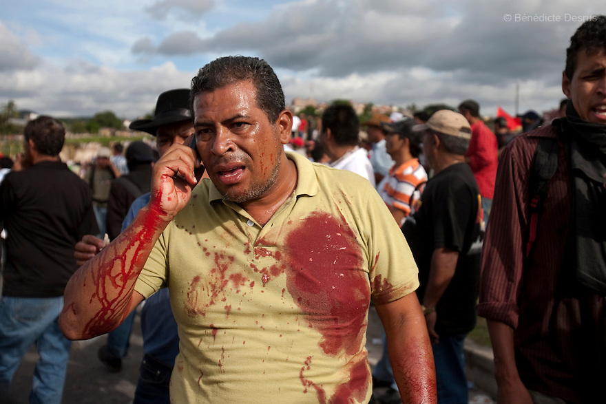 5 July 2009 - Tegucigalpa, Honduras - A supporter of ousted Honduran President Manuel Zelaya after a battle between soldiers and protesters outside the Toncontin international airport in Tegucigalpa. The blood on his shirt is from Isy Obed Murillo Mencias, 19 years old. Isy was killed with a headshot during the confrontation. Photo credit: Benedicte Desrus