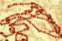 Fruit Fly (Drosophila) chromosomes. LM X400.