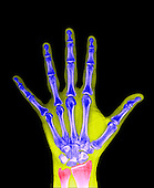 X-ray of a human adult hand.