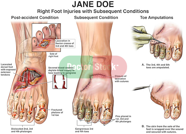 how to fix a dislocated big toe at home
