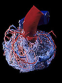 Human heart circulation. Resin cast view of the coronary arteries (red) and veins (blue). Note the septum of the heart and the aorta and vena cava. The coronary arteries branch into the smaller arterioles and capillaries which supply the heart muscle with oxygen-rich blood. Deoxygenated blood drains into the coronary veins and away from the heart. The heart beats about 60-85 times per minute at rest and within that time pumps the all the blood (approximately 5 liters) around the body.