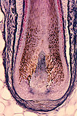 Base of a hair follicle. Hairs are dead but the base contains DNA useful in forensic analysis. LM X63.