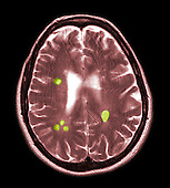 MRI showing multiple sclerosis in a brain section of a 42 year old female. There are multiple foci of oblong shaped periventricular and pericallosal white matter lesions but no evidence of plaque enhancement.