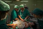 2015-03-03. UN &Aacute;NGEL CON LAS ALAS PEGADAS. &copy; Calamar2/Susana HIDALGO &amp; Pedro ARMESTRE<br /> El cirujano Asturiano Jes&uacute;s Bar&oacute;n Thaidigsmann el catalan Diego Luis Carrillo Blanchar preparan con el equipo medico a &Aacute;ngel C&eacute;sar en el quir&oacute;fano para comenzar la intervenci&oacute;n.<br /> <br />  &Aacute;ngel C&eacute;sar Alonso, de 10 meses, naci&oacute; por ces&aacute;rea en Chiclayo (Per&uacute;) y los m&eacute;dicos le diagnosticaron s&iacute;ndrome de Apert, una enfermedad gen&eacute;tica que afecta a la forma de la cabeza y que hace que el peque&ntilde;o tenga los ojos abultados y padezca sindactilia (los dedos de las manos y de los pies pegados). El s&iacute;ndrome de Apert es una de las 7.000 enfermedades raras que existen en el mundo y su prevalencia oscila entre 1 y 6 casos por cada 100.000 nacimientos. La historia de este beb&eacute; es la historia de unos padres coraje, C&eacute;sar Cruz y Edita Jim&eacute;nez, que se desviven para que el peque&ntilde;o pueda tener la mejor calidad de vida posible. C&eacute;sar y Edita acudieron el pasado mes de marzo junto a su beb&eacute; al hospital San Juan de Dios, en Chiclayo, al reclamo de una campa&ntilde;a solidaria de intervenciones quir&uacute;rgicas organizadas por la Sociedad Espa&ntilde;ola de Cirug&iacute;a Pl&aacute;stica, Reparadora y Est&eacute;tica (Secpre) y la ONG Juan Ciudad. Los cirujanos espa&ntilde;oles le operaron las manos para separar unos dedos de otros. La intervenci&oacute;n dur&oacute; aproximadamente una hora y media y el peque&ntilde;o necesit&oacute; de curas posteriores.<br /> La operaci&oacute;n fue el primer paso en la mejora de la salud de &Aacute;ngel. Necesitar&aacute; al menos otra m&aacute;s para separar los dedos de los pies. Sus padres son humildes y apenas tienen recursos.  C&eacute;sar, el padre, trabaja levantando casas de adobe. Edita, la madre, vive para su hijo y le gustar&iacute;a en un futuro retomar su profesi&oacute;n de en