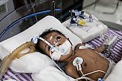 22 days old Praseetha lies on the bed at the Intensive Therapy Unit of the Pediatric Section of the Narayana Hrudayalaya in Bangalore, Karnataka, India. Photo: Sanjit Das/Panos