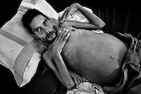 Magdaleno M., a 35-year-old Honduran immigrant suffering cirrhosis of the liver in the end-stage, lies on the bed in a refugee shelter in Tapachula, Mexico, 21 May 2011.