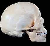 Female human skull from right side. Prominent features include the zygomatic bone and arch or cheek bone and the external acoustic meatus or ear canal.
