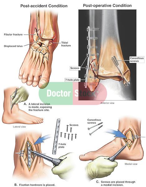 Distal Tibia Distal tibia and fibula,