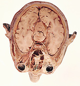 The human head and brain in transverse section, revealing the position of the cerebral hemispheres of the brain in relation to the sinuses in the skull (top, middle) and the eyes and optic nerves in their complex relationship to the other structures and organs in the head.