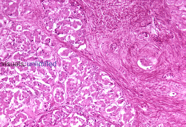 Human pancreas section with chronic pancreatitis. LM X36