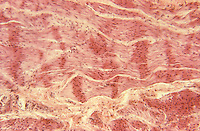 Smooth muscle with contraction bands. LM X44