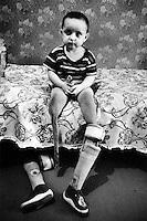 Markha mistet begge beina under et rakettangrep. Moren beskyttet Markha med sin egen kropp under angrepet, og døde. Markhas bein stakk ut fra bak morens kropp, og ble sprengt bort....