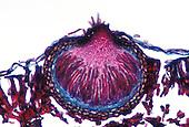 Apple Scab Fungus (Venturia inaequalis) cleistothecium. LM