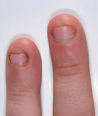 Hand of a ten-year-old boy who has been biting his fingernails