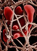 Blood clot formation.  SEM X6,000