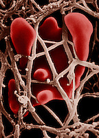 Blood clot formation.  SEM X6,000