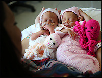 BNPS.co.uk (01202 558833)<br /> Pic: CorinMesser/BNPS<br /> <br /> Amber, left, and Jasmine at 28 weeks with mum Kat.<br /> <br /> Twin baby girls who have beaten the odds to survive after being born three months premature have been reunited in time for Christmas.<br /> <br /> Little Jasmine and Amber Smith-Leach were born 12 weeks early, weighing just 2lb 2oz and 2lb 12oz respectively. <br /> <br /> Despite not being due until January 22, the babies have fought through setback after setback.<br /> <br /> Last night (sat) the pair shared a cot for the first time while mum Kat Smith slept next do them.