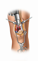 Biomedical illustration of knee surgery showing drilling of the patella for extensor muscle tendon repair.